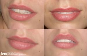 micro labios